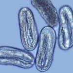 Soybean disease: Soybean Cyst Nematode - Soybean Cyst Nematode eggs (enlarged)